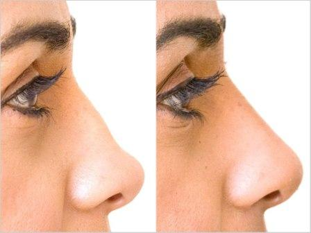 Best Nose Surgery Clinic in Lokhandwala Andheri