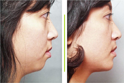 Well Defined Chins Clinics in Mumbai
