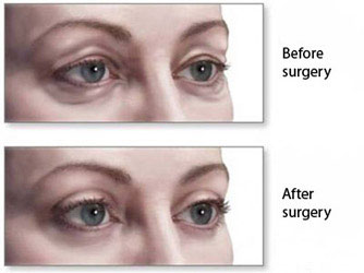 Eyebag Removal Clinic Lokhandwala