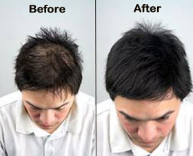 Hair Loss Before After Pics Andheri Mumbai