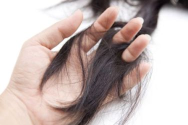 Top Hair Loss Treatment Clinic Andheri West Cost Price