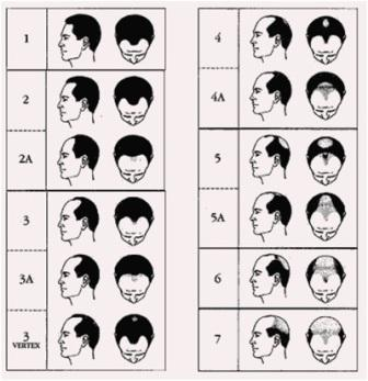 Best Hair Loss Clinic For Men Mumbai